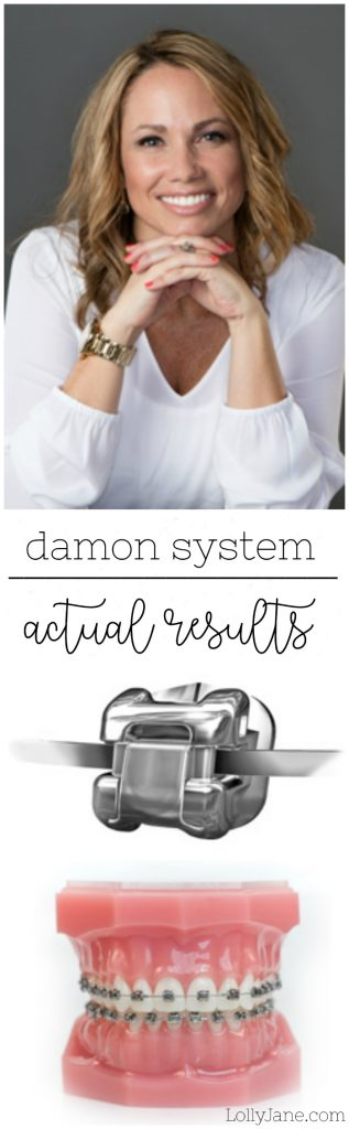 Check out these results of the Damon System! We love the self-ligating brackets to shorten your braces experience and make them more comfortable!