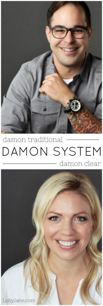 Damon System Braces | Learn all about the benefits of Damon System braces versus traditional braces. We love the advantages of the Damon System!